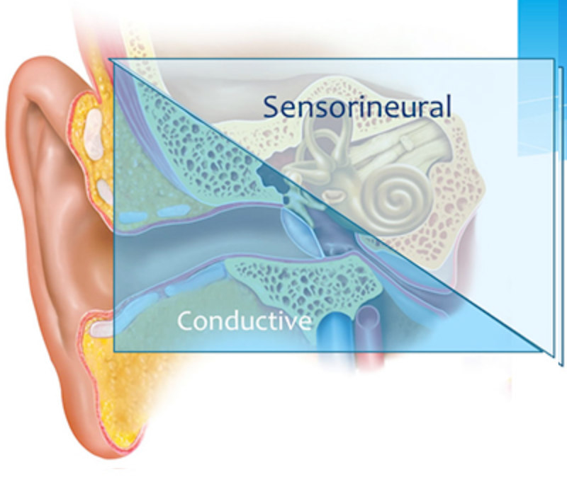 ear diagram types of hearing loss